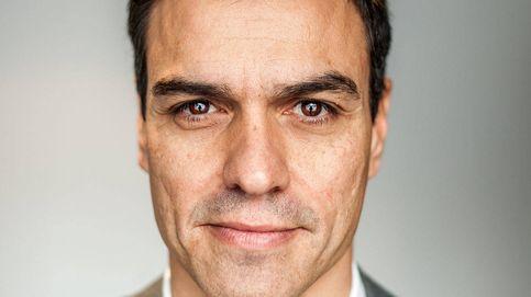 Los retoques estéticos de Pedro Sánchez (sí, se los ha hecho)