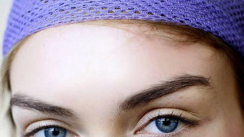 Ácido succínico, quédate con su nombre si tu piel es sensible y con acné
