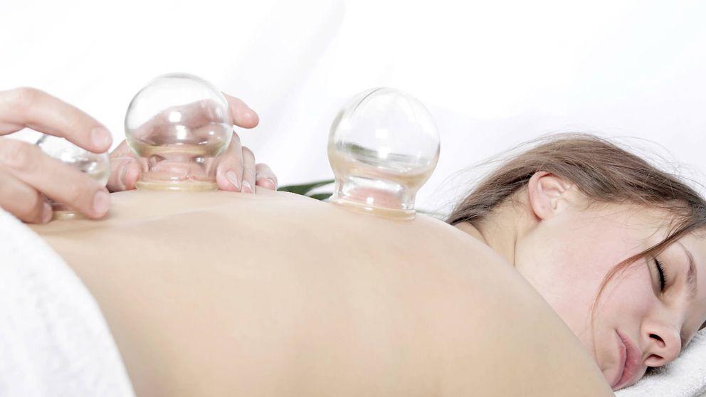 Cupping: la terapia que engancha a Gwyneth Paltrow o Jennifer Aniston
