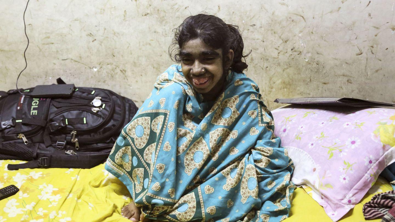 Una niña india afectada gravemente por el 'síndrome del hombre lobo' (EFE/Igor G. Barbero)