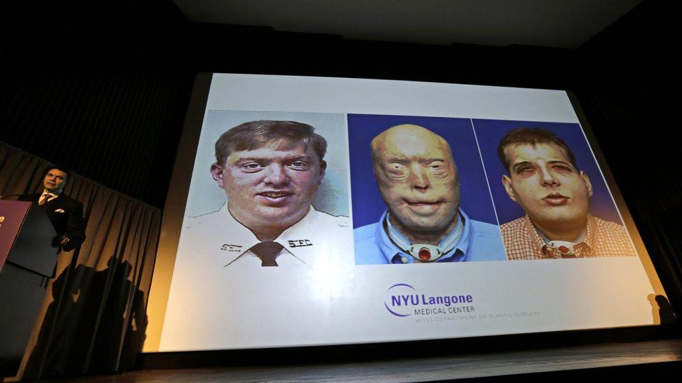 Foto: El doctor Eduardo Rodríguez explica la evolución de Patrick Hardison antes del accidente y después (EFE)