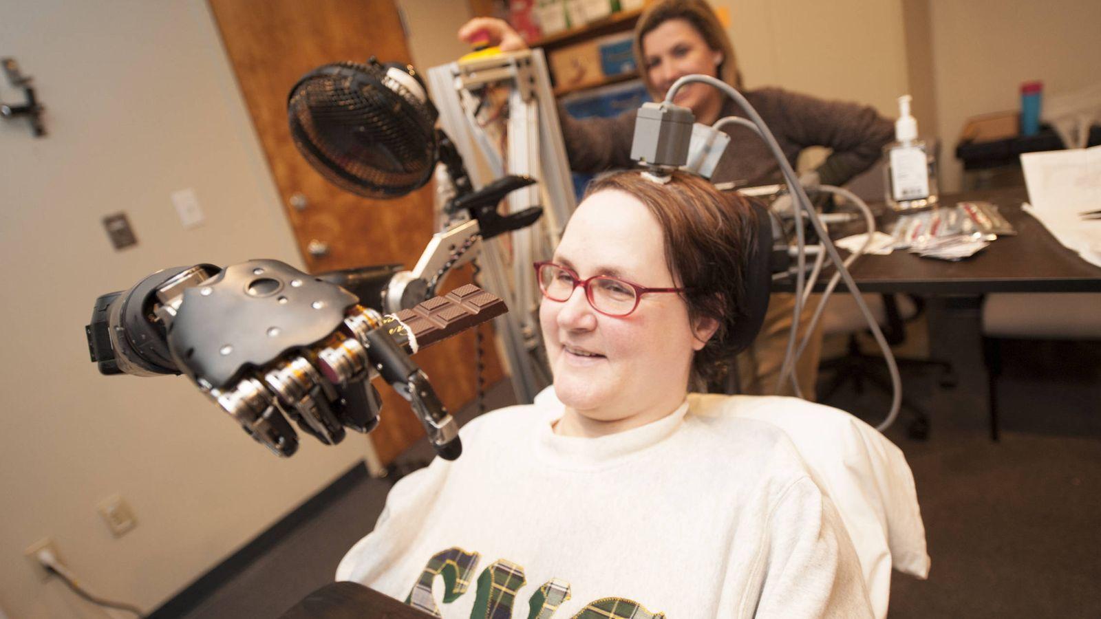 Foto: Jan Scheuermann controló un brazo robótico con la mente en 2014