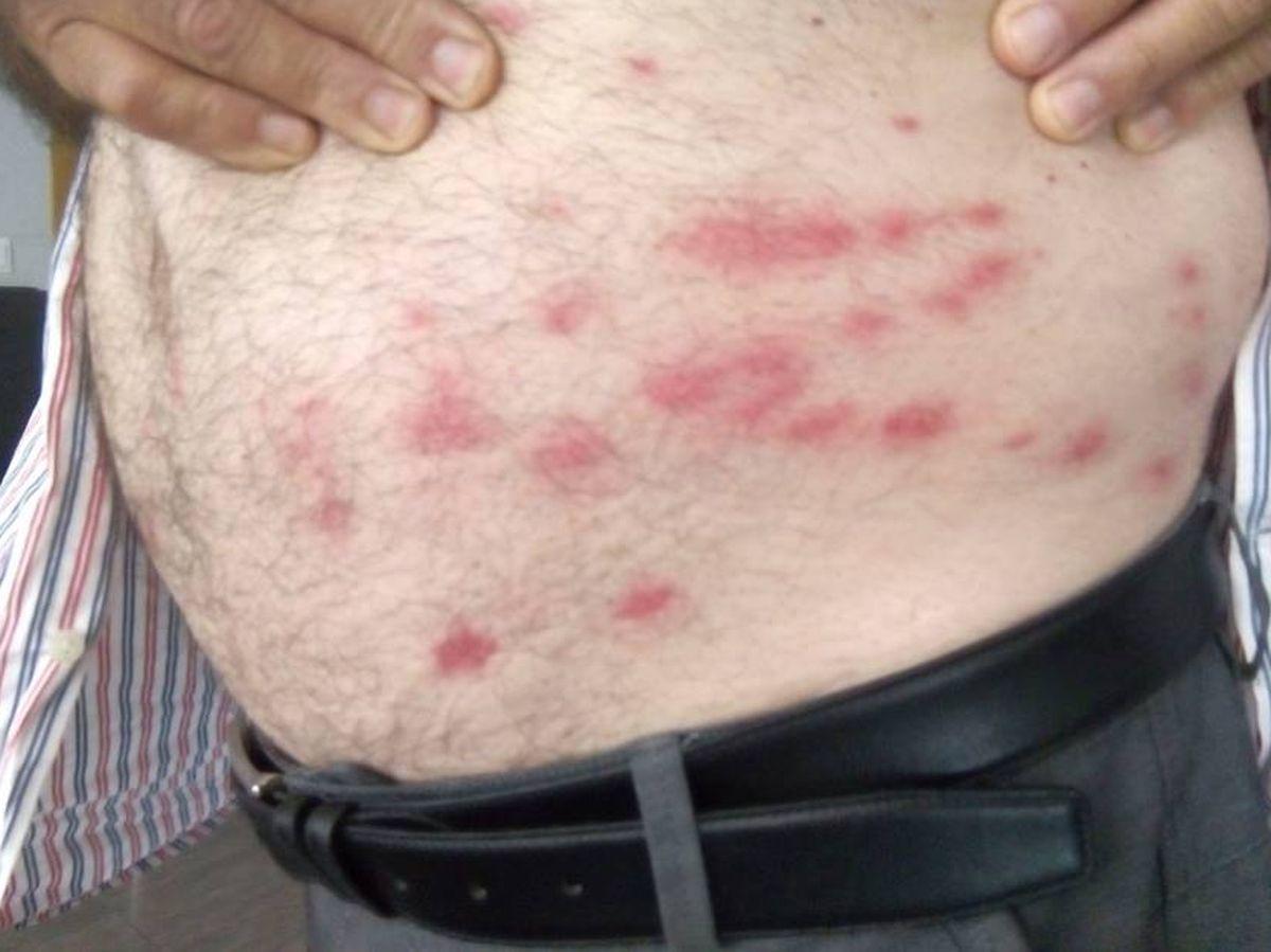 Foto: Picaduras de la mosca negra. (AVA-ASAJA)