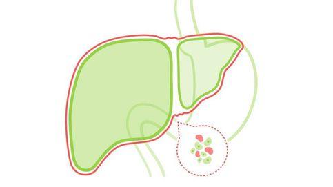 Hígado graso: causas, síntomas y remedios