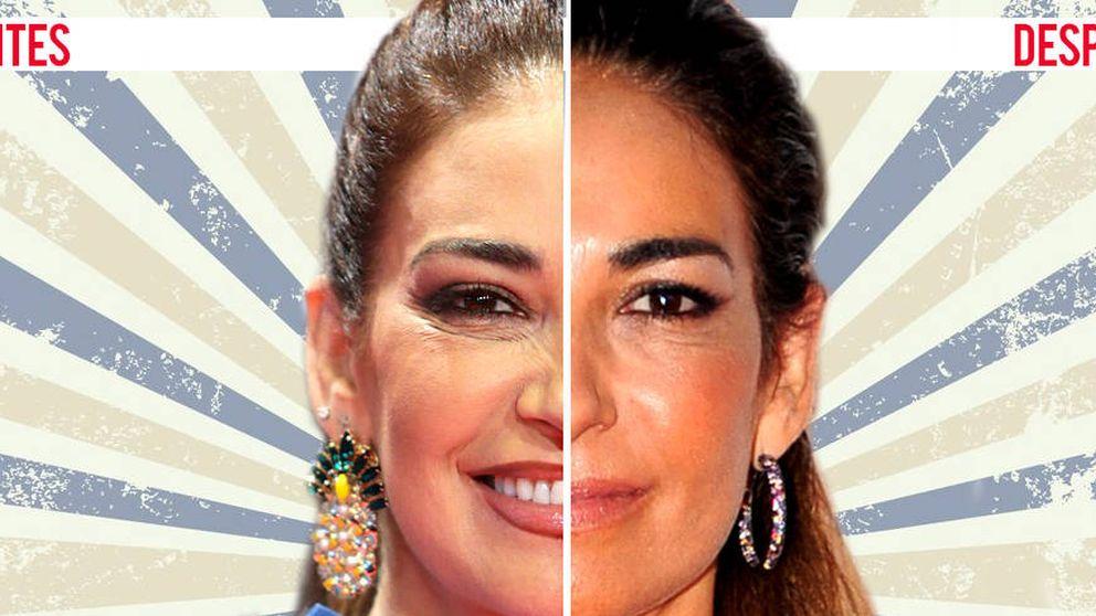 El ¿nuevo? rostro de Mariló Montero, a juicio en nuestro cirujómetro