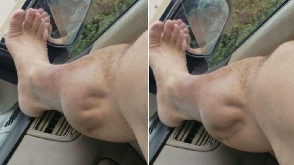 Foto: Imagen de la pierna de Ángel. (Youtube)
