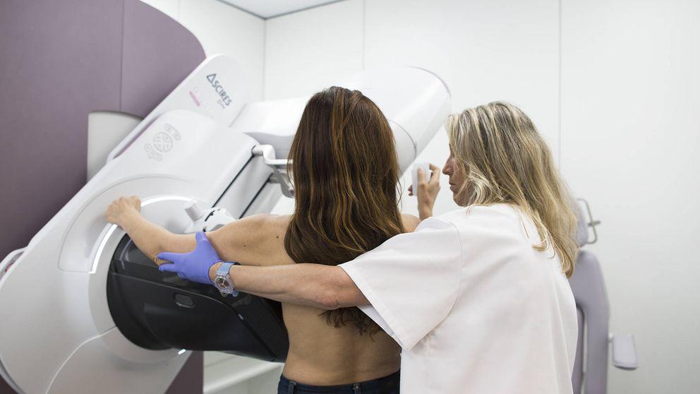 Un algoritmo para detectar a las mujeres con mayor riesgo de cáncer de mama