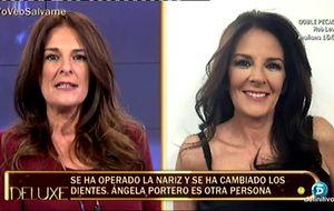 El nuevo rostro de Ángela Portero tras pasar por el quirófano