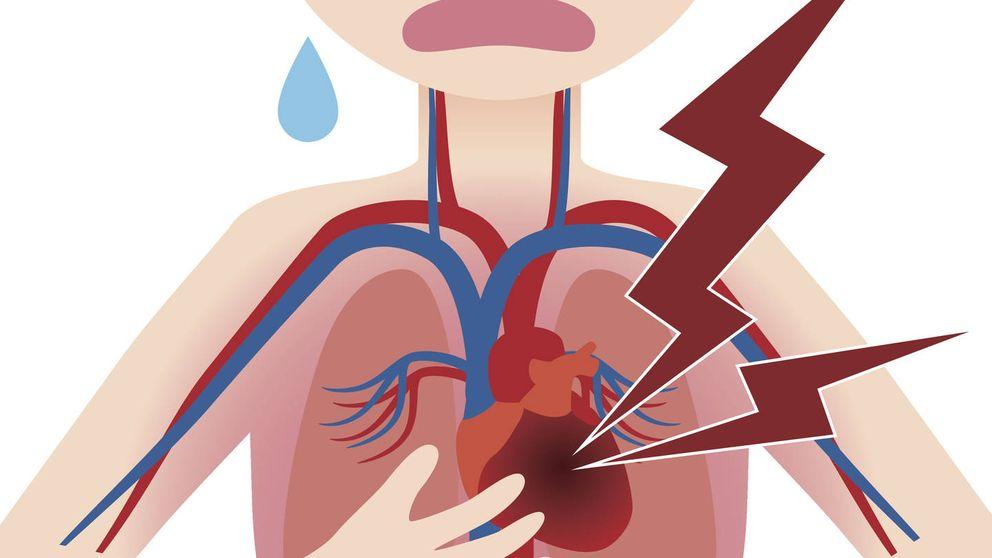 Síntomas de que puede ser un infarto a los que no se presta atención