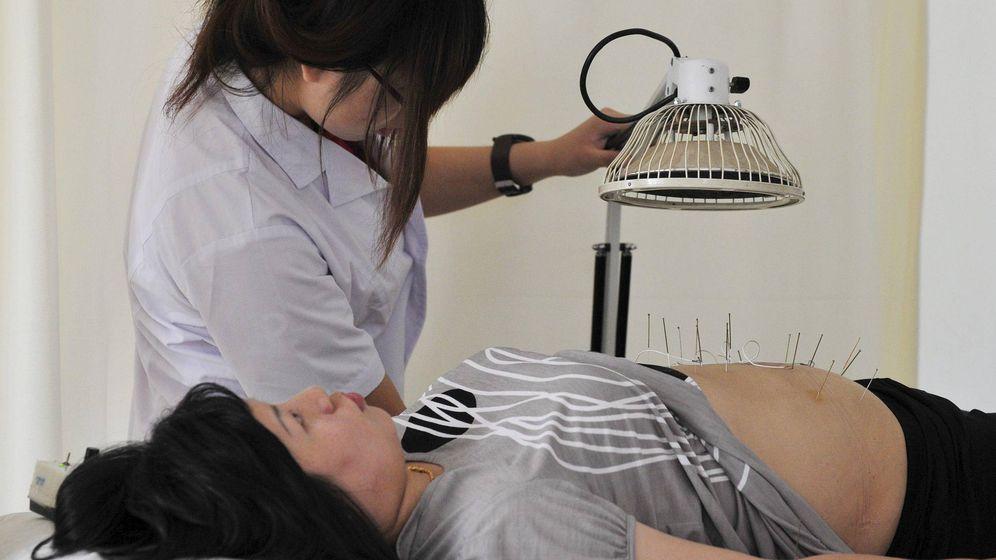 Foto: Una mujer recibe un tratamiento con acupuntura. (EFE)