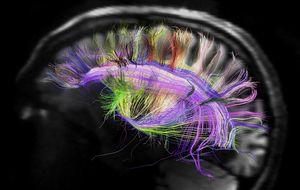El cerebro humano es una cámara digital