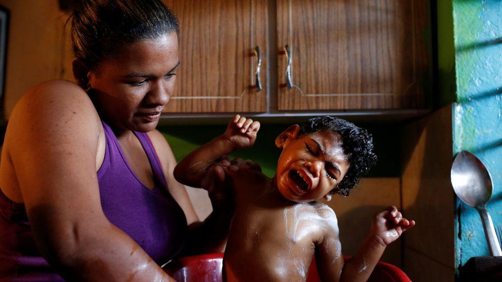 Las pruebas de la crisis humanitaria en Venezuela