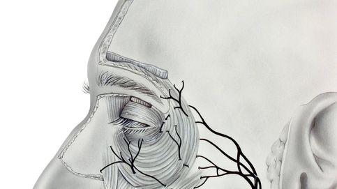 Qué es la parálisis de Bell: síntomas, causas y complicaciones