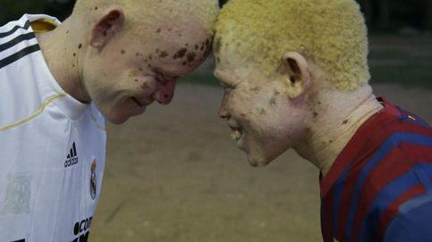 'Black man, white skin':  cuando los albinos se refugian en un balón