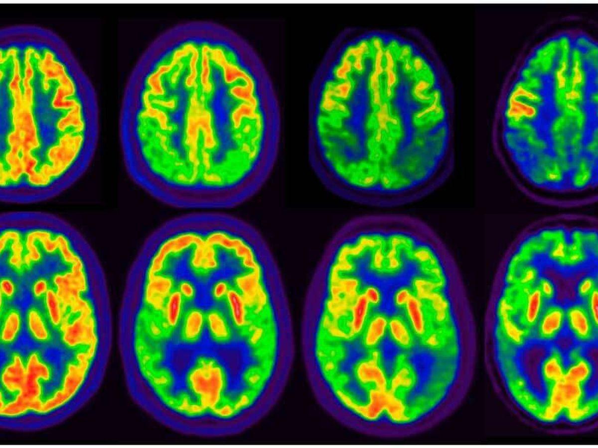 Foto: Imagen de un PET que muestra la progresión del alzhéimer. (Clínica Universidad de Navarra)