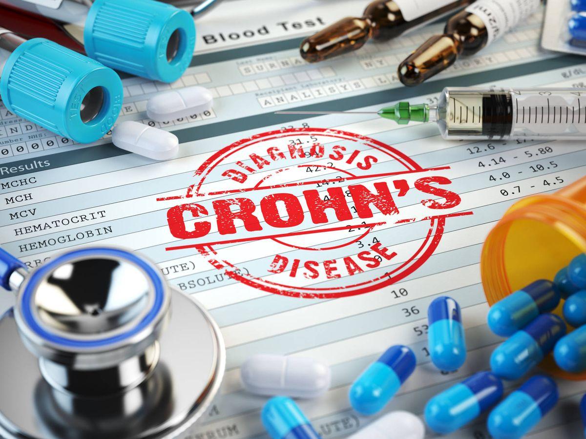 Foto: La enfermedad de Crohn puede tener otras manifestaciones extradigestivas. (iStock)