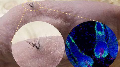 ¿Por fin una solución a la calvicie? Logran que crezca el pelo usando células madres