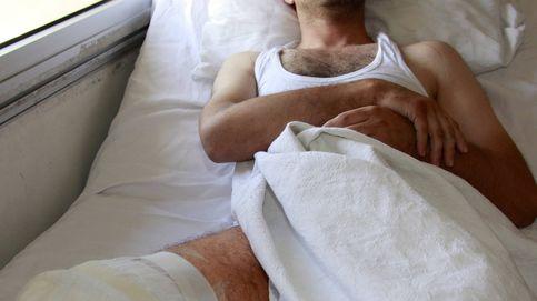 ¿Regenerar extremidades perdidas? Una investigación sugiere que es posible