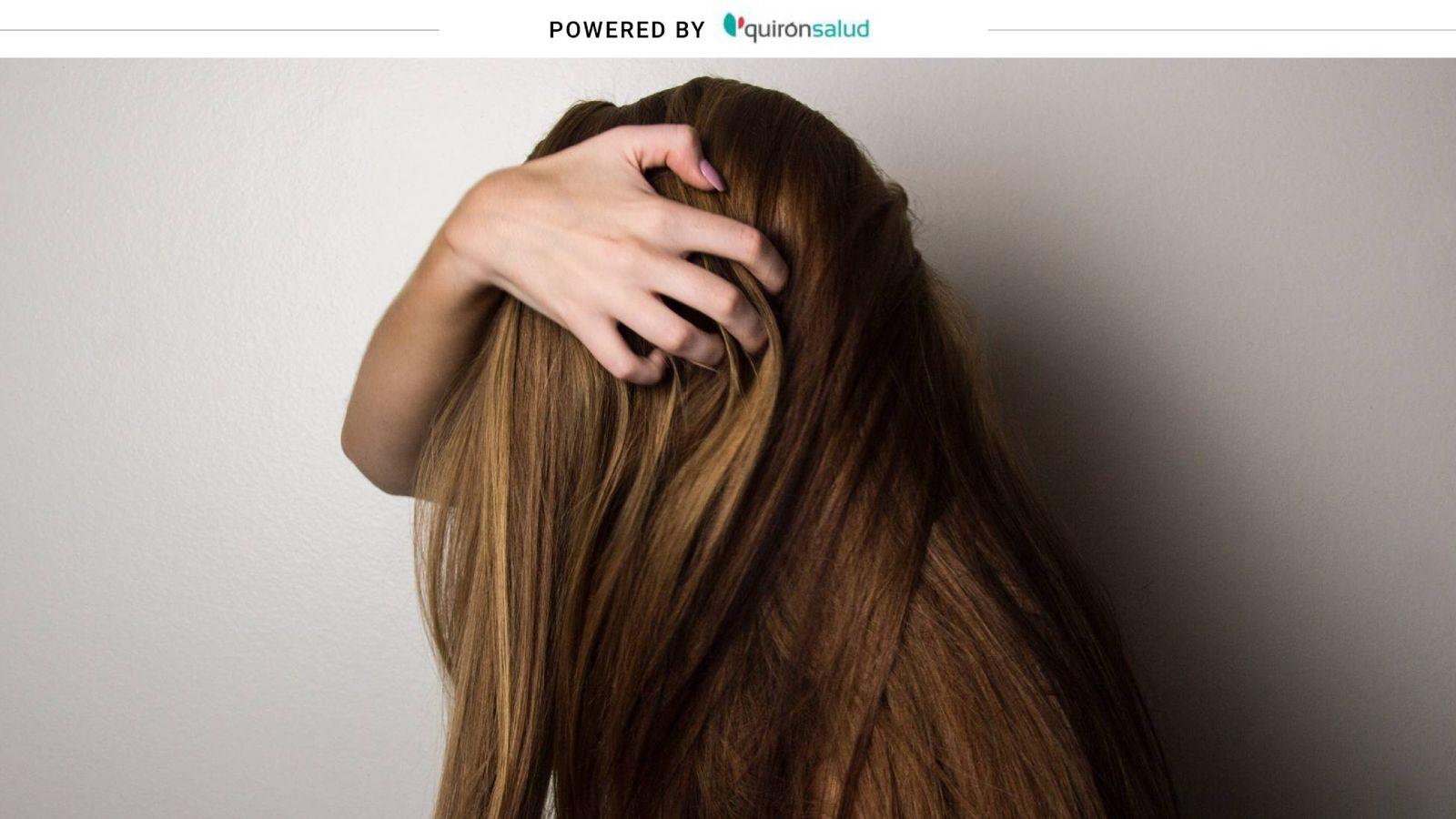 página cáncer Retencion  Salud: Ni champú anticaída ni vitaminas: cómo frenar (de verdad) la alopecia