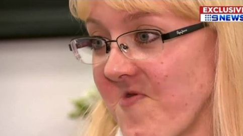 Una mandíbula en 3D cambia la vida de una enferma de cáncer