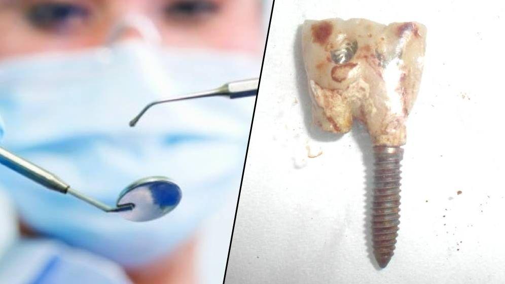 Foto: Montaje con una de las prótesis dentales perdidas por el señor Guillien. (Cedida)