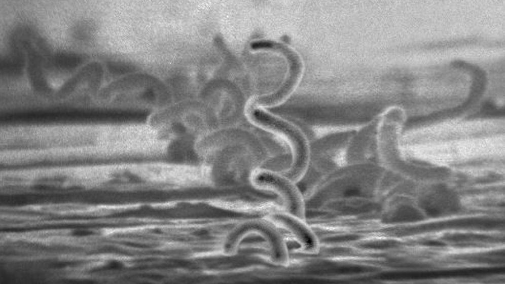 Foto: La bacteria Treponema pállidum, responsable de causar sífilis. (CDC / Dr. David Cox)