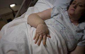 Una cirugía menos invasiva para el linfedema en el Hospital Sant Pau