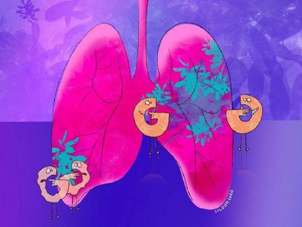 Foto: Los investigadores han demostrado que son capaces de retardar el crecimiento de los tumores pulmonares. Foto: Escuela Politécnica Federal de Lausana
