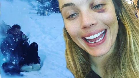 El accidentado viaje a la nieve de una ganadora de 'Gran Hermano VIP'