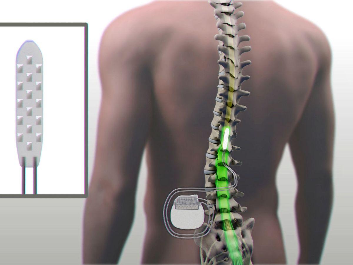 Foto: Paciente con lesión de médula espinal. Foto: EFE Clínica Mayo