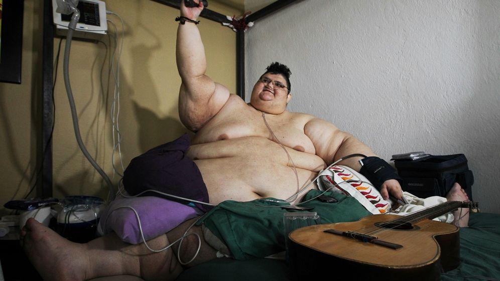 El hombre más obeso del mundo quiere adelgazar