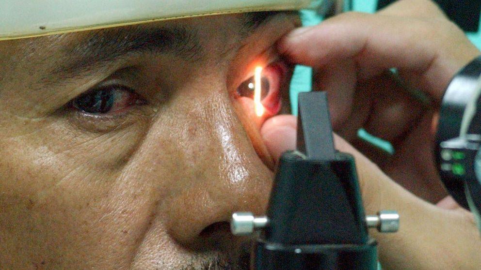 Una nueva tecnología puede detectar el glaucoma 18 meses antes que lo habitual