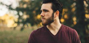 Post de La última moda del trasplante capilar: de la muerte de los calvos a los injertos en la barba
