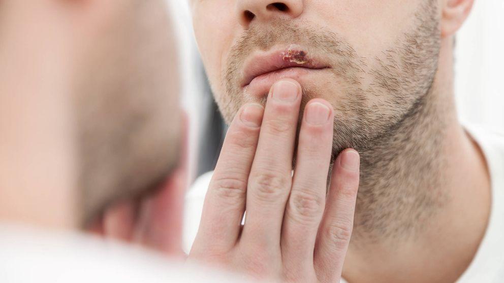 El herpes no tiene relación con el Alzheimer, la ciencia refuta este mito