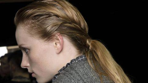 El cuero cabelludo necesita atención: cuídalo dependiendo de si es seco o graso