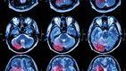 Análisis de sangre e inteligencia artificial: la nueva técnica contra los tumores cerebrales
