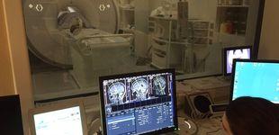 Post de ¿En qué consiste la resonancia magnética y para qué casos se recomienda?