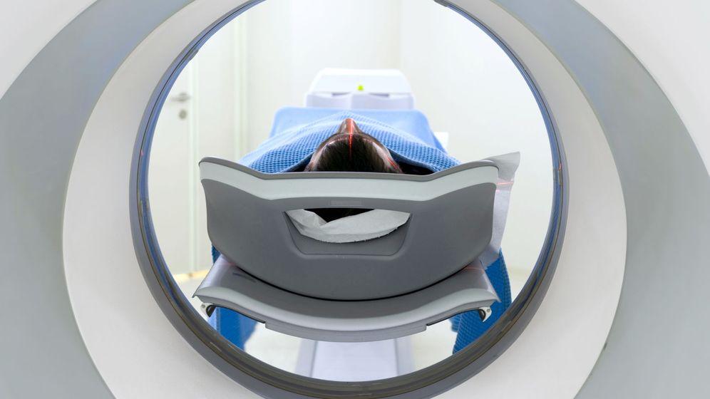 Foto: La radiación de un TAC es equivalente a la de más de 200 radiografías normales. (iStock)
