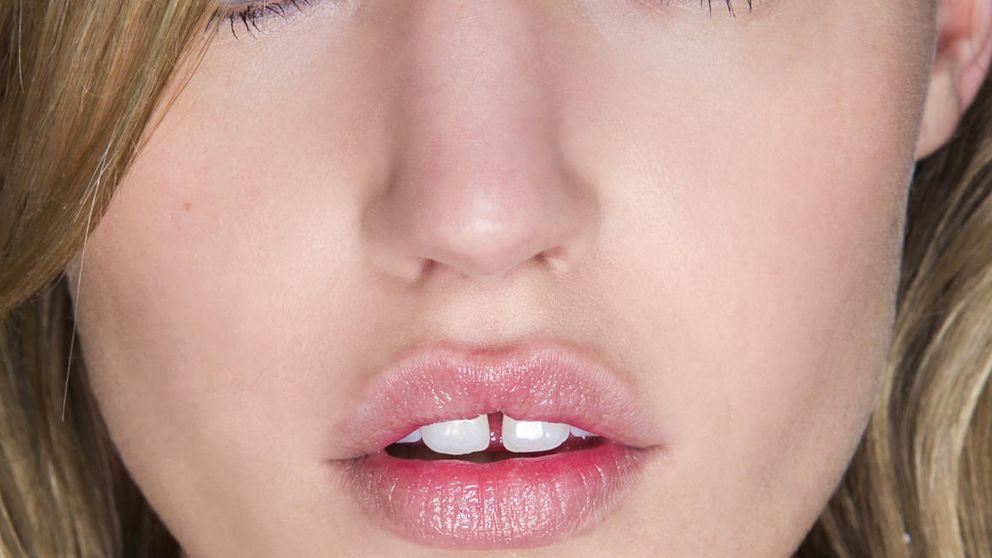 ¿Quieres mejorar tus labios? Te contamos cómo conseguirlo