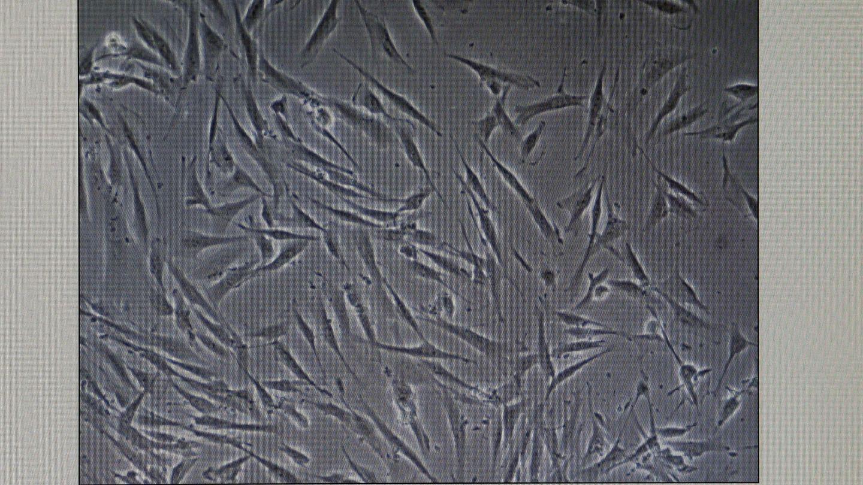 La terapia con células madre puede lograr tratamientos universales rápidos y eficaces (EFE/Juan González)