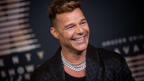 ¿Qué le ha pasado a Ricky Martin? Los expertos analizan su 'nuevo rostro'