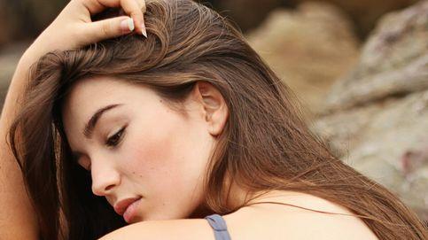 Así es como están relacionados el DIU y el acné