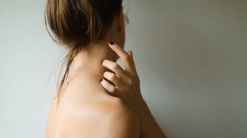 Dermatitis atópica: ¿qué podemos hacer para prevenir (o aliviar) los brotes?