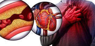 Post de El límite de colesterol que no debes pasar: así puedes evitarlo sin medicamentos
