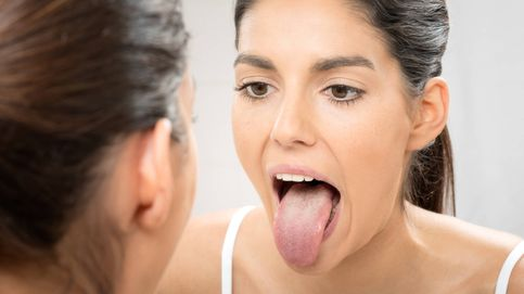 Esto es lo que te puede ocurrir si tienes la lengua muy hinchada