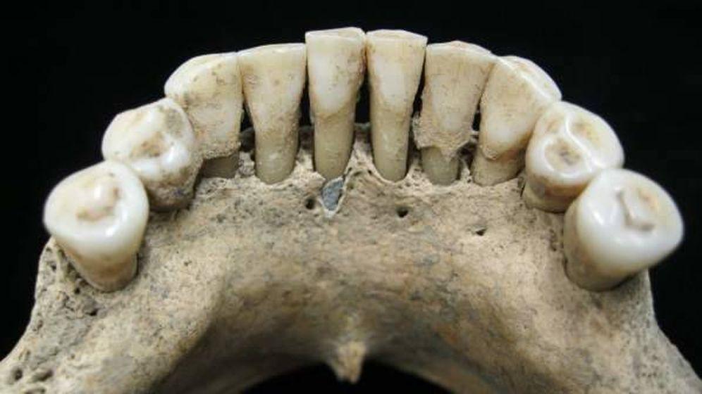 Foto: En el centro de la imagen, restos de lapislázuli hallados en la dentadura de una mujer de la Edad Media.