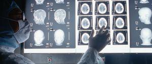 Foto: El cerebro humano es capaz de producir cerca de 1.400 nuevas neuronas cada día