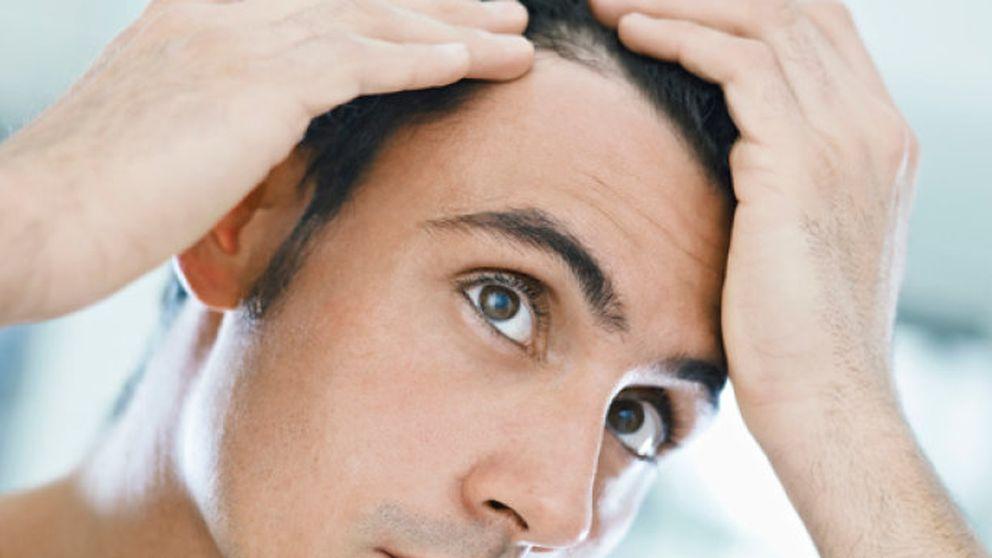 Mesoterapia capilar, lo último contra la caída del cabello masculino