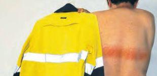Post de Un hombre sufre quemaduras de primer grado por usar una chaqueta reflectante