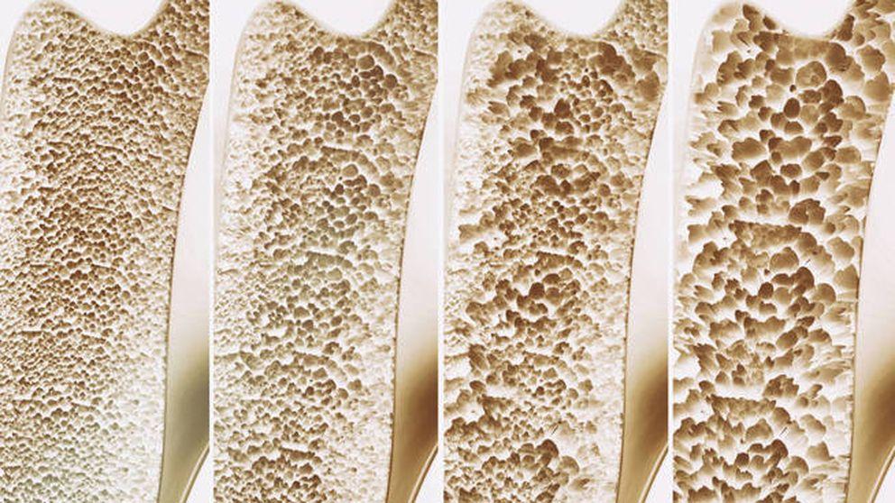 ¿Vale cualquier tipo de ejercicio para prevenir la osteoporosis?